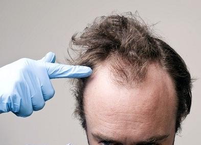 Αιτίες Απώλειας Μαλλιών