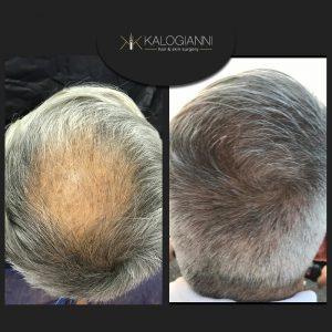 Μεταμόσχευση μαλλιών πριν και μετα